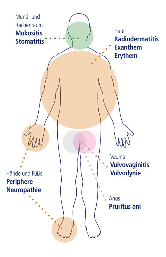 Nebenwirkungen-in-der-Krebstherapie